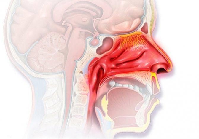 Носоглотка воспаление лечение лекарства и препараты