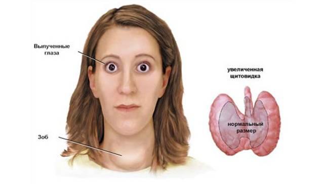 Тиреотоксикоз - что это такое? причины, симптомы, диета, лечение, операция