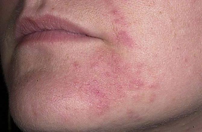 Виды дерматитов, их лечение и диета
