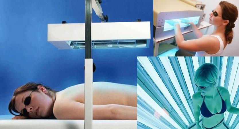 Применение фототерапии для лечения псориаза
