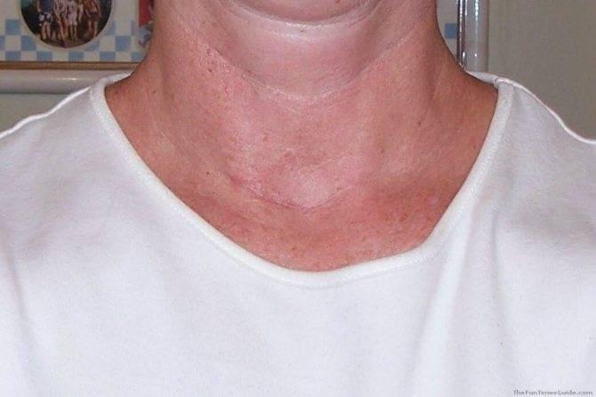 Рак щитовидной железы симптомы у женщин прогноз