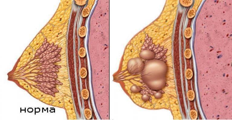 киста левой молочной железы