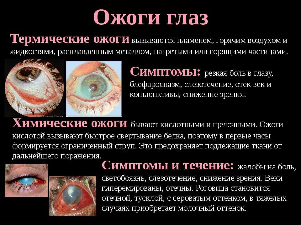 Лучшие глазные капли при ожоге глаз: виды и свойства