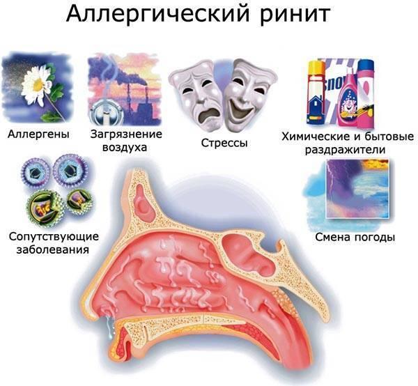 Эффективное и безопасное лечение аллергического ринита при беременности