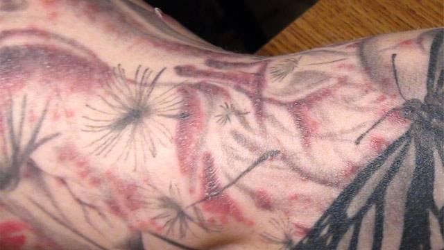 Псориаз и татуировки – противопоказания, благоприятные условия, подготовка