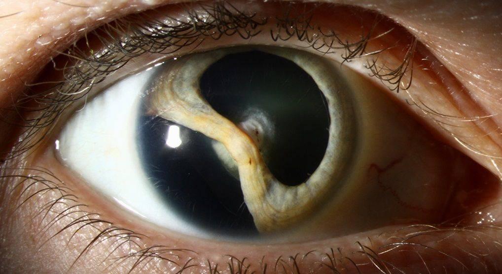 Диплопия в глазах – что это за болезнь, и как с ней можно справиться?