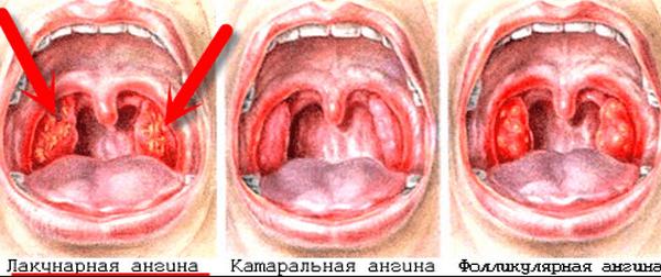 ангина заразная или нет