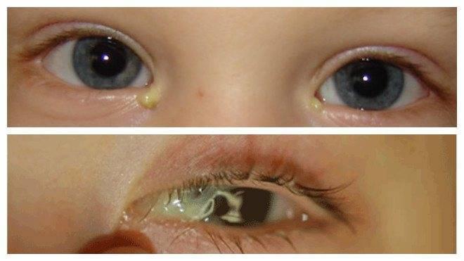 Почему у ребенка закисают глаза по утрам, и как ему помочь