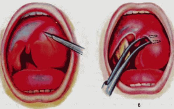 абсцесс миндалин лечение