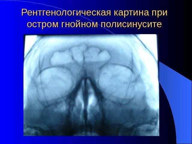 лечение пансинусита без прокола