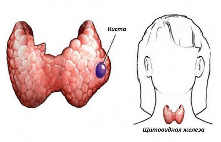 киста щитовидной железы что это такое