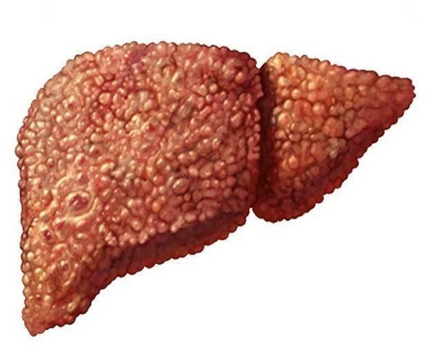 болит печень гепатит с