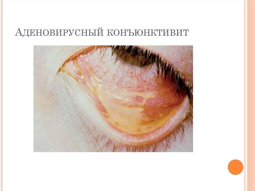 Вирусный конъюнктивит: лечение, симптомы, причины