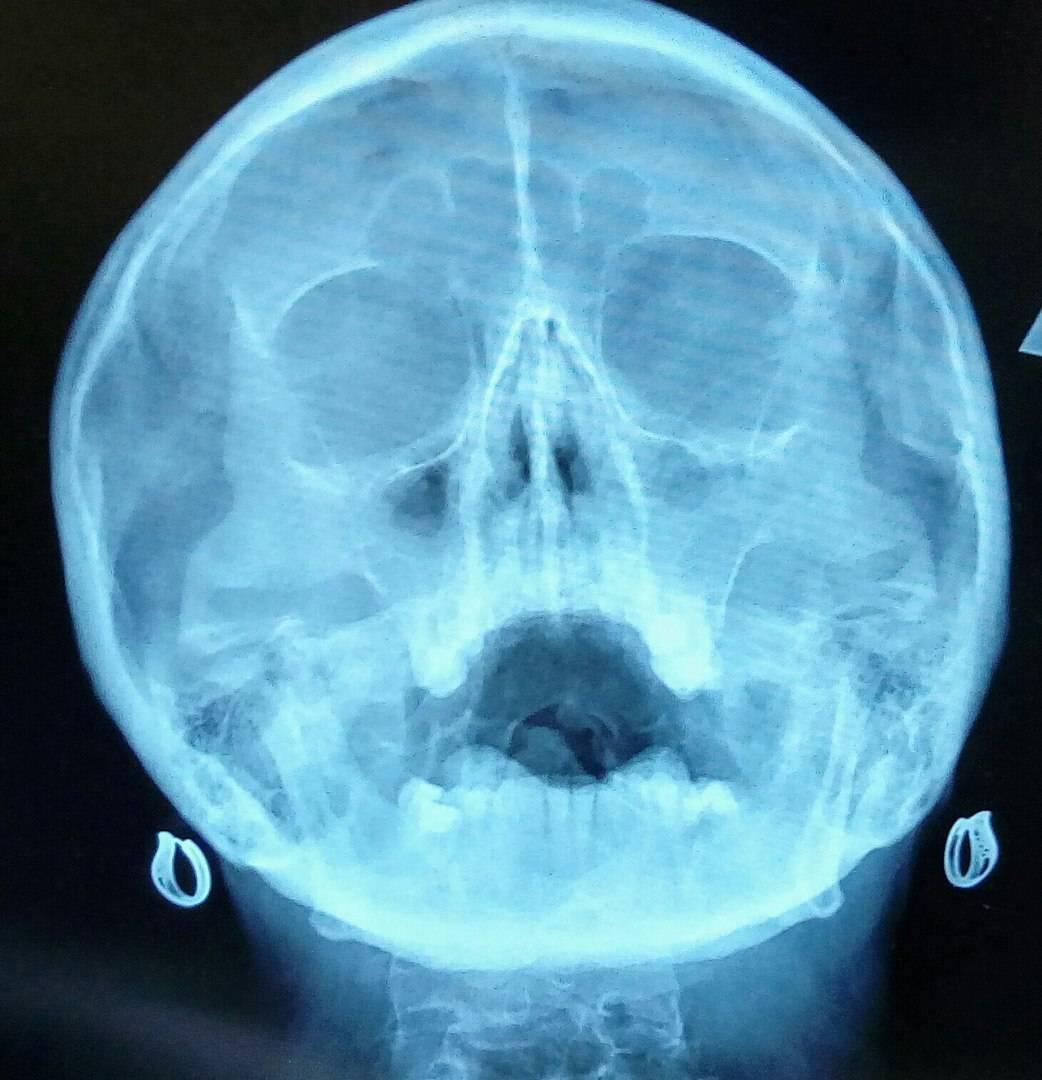 рентген пазух носа как делают