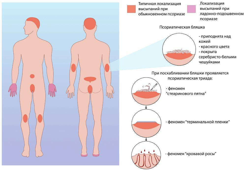 стационарная стадия псориаза