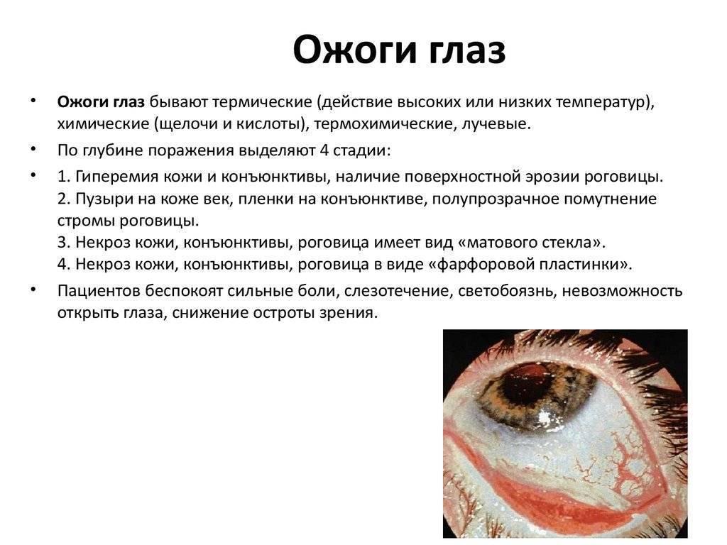 лечение глаз от сварки в домашних условиях