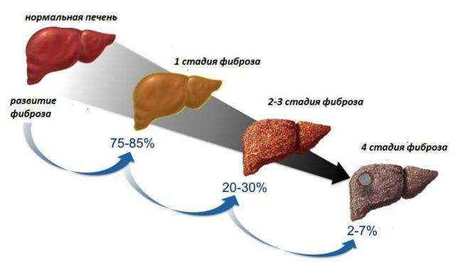 Фиброз печени 3 степени: лечение, прогноз жизни, правильное питание