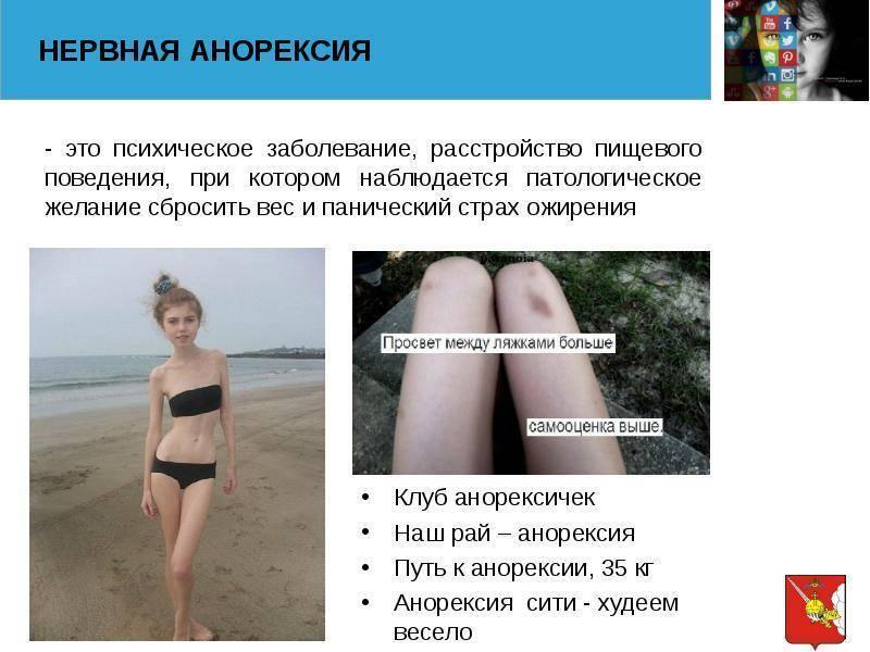 тест на анорексию онлайн