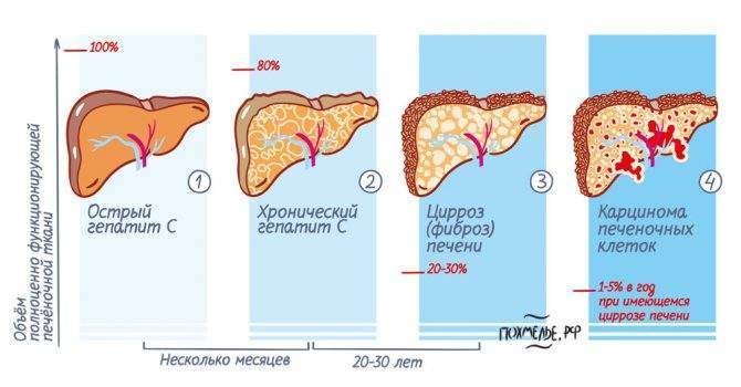 цирроз 3 степени сколько живут