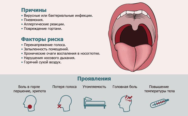 Аллергический фарингит: причины, симптомы и лечение
