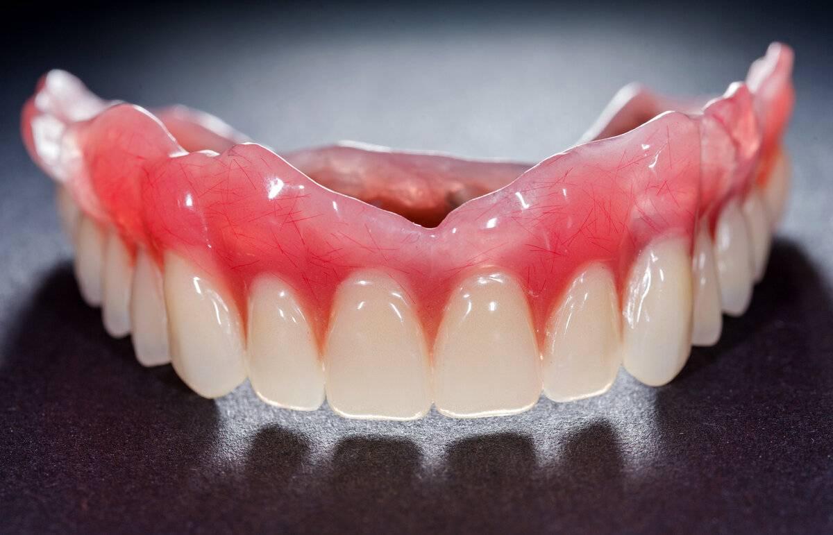 Несъемные зубные протезы: обзор методик и цен