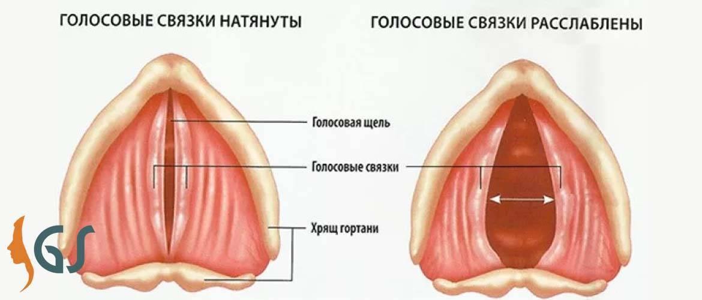 Узелки на голосовых связках у ребенка лечение. лечение певческих узелков. лечение узелков голосовых складок
