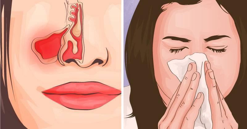 Заложен нос, но сопли не текут? в чем может быть причина и чем это лечить?