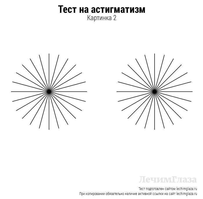 как определить степень астигматизма