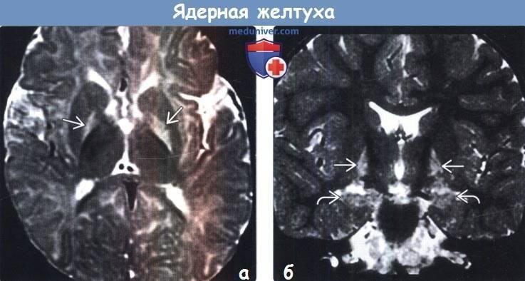 Ядерная желтуха новорожденных - симптомы, последствия, признаки