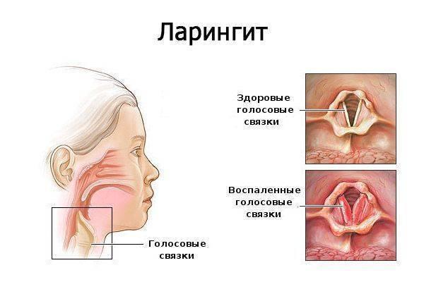 Эффективные методы лечения фаринголарингита и устранение симптомов