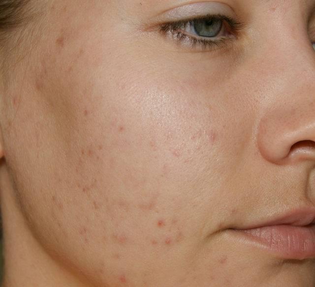Медикаментозное и народное лечение демодекоза на лице
