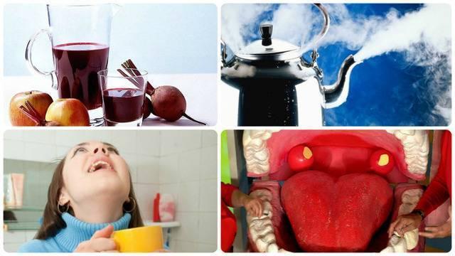 Самые эффективные народные средства при простуде — чем полоскать горло в домашних условиях?