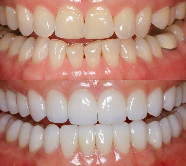 косметическая реставрация передних зубов