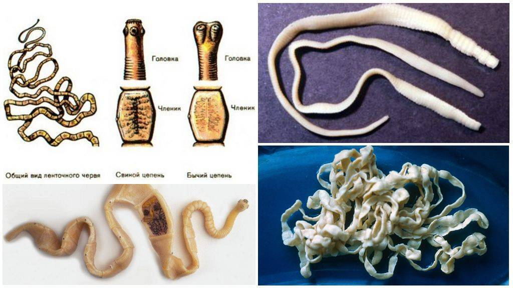Тениоз - диагностика, симптомы и лечение