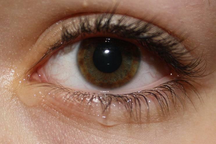 Что делать, если чешутся глаза и слезятся: советы, причины