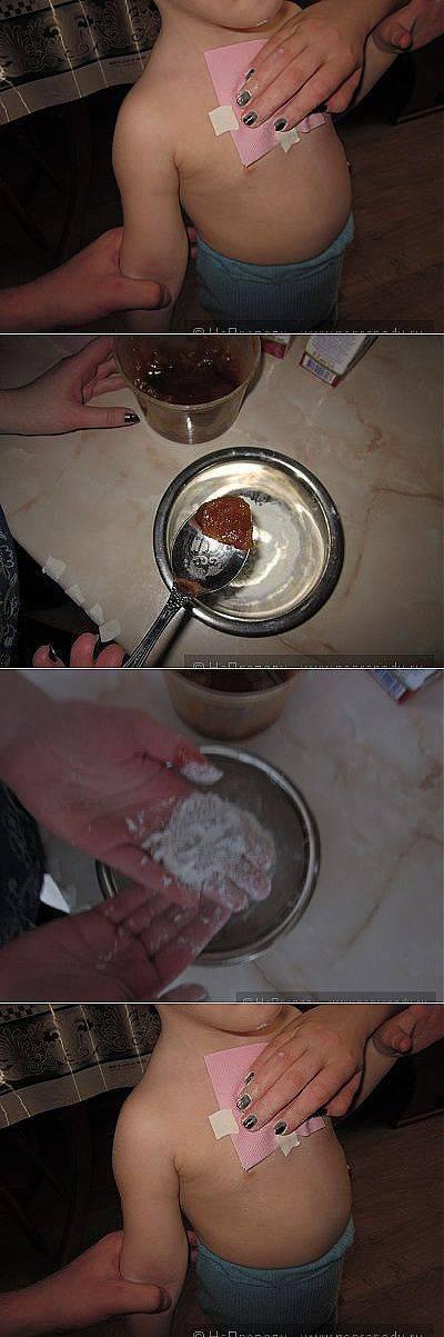 Прогревающие лепешки от кашля: картофельная, горчичная, медовая лепешка от кашля для детей и взрослых