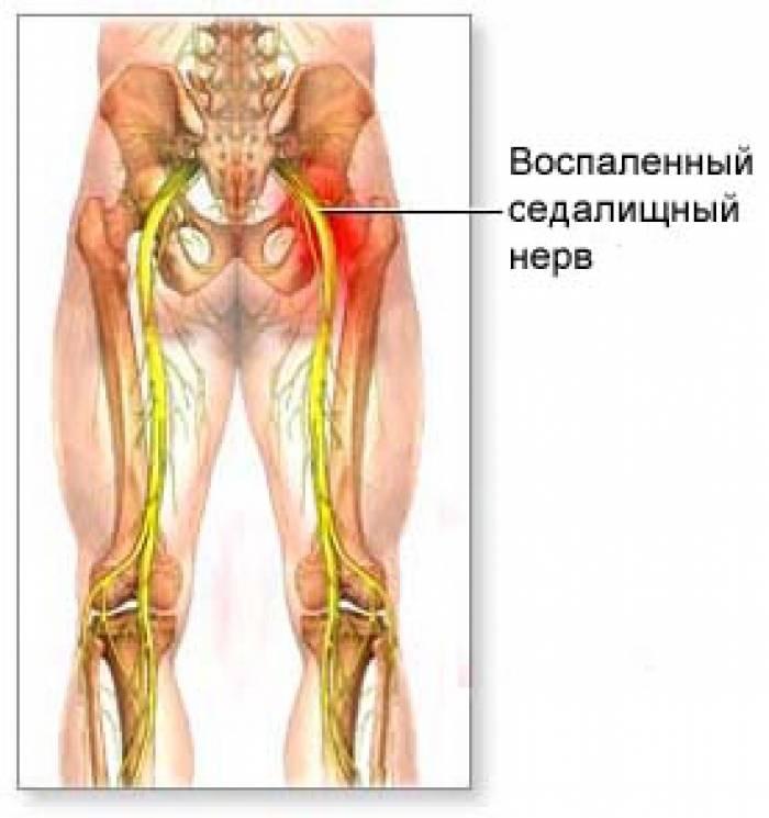 Причины воспаления седалищного нерва. анализ симптомов и выбор лечения