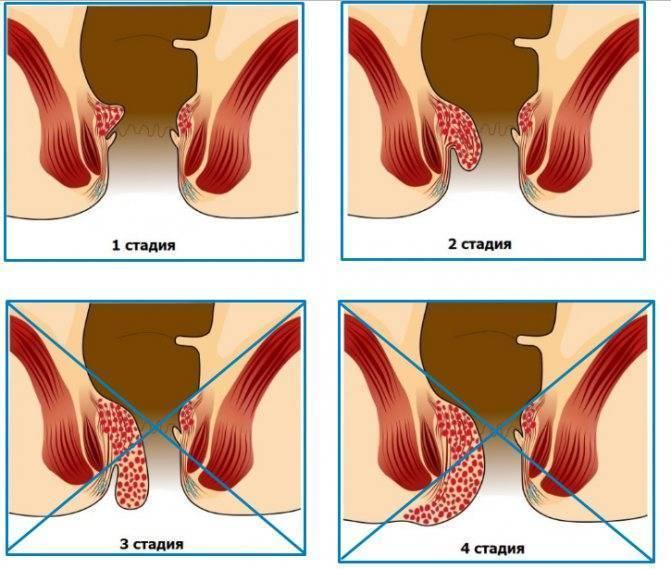 Геморрой: лечение в домашних условиях народными средствами быстро