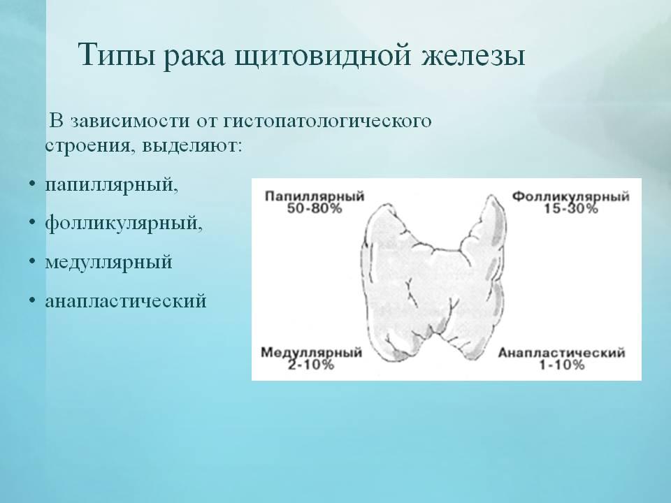 метастазы рака щитовидной железы