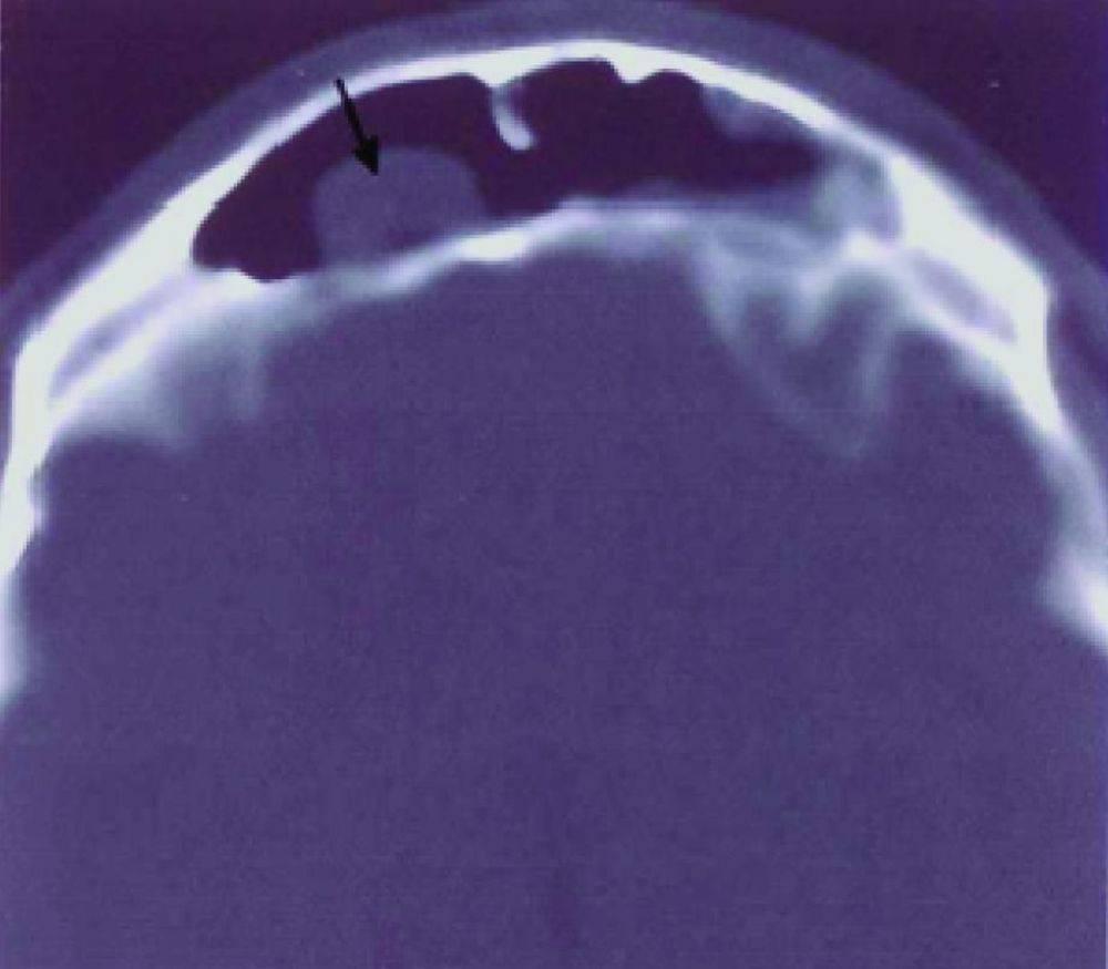 Мукоцеле лобной пазухи – как проявляется и чем лечится