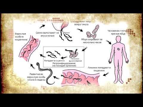Острицы у беременных лечение. что это за глисты