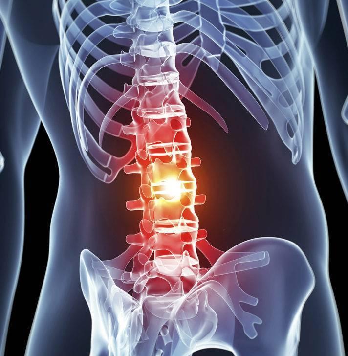 Невралгия пояснично крестцового отдела позвоночника