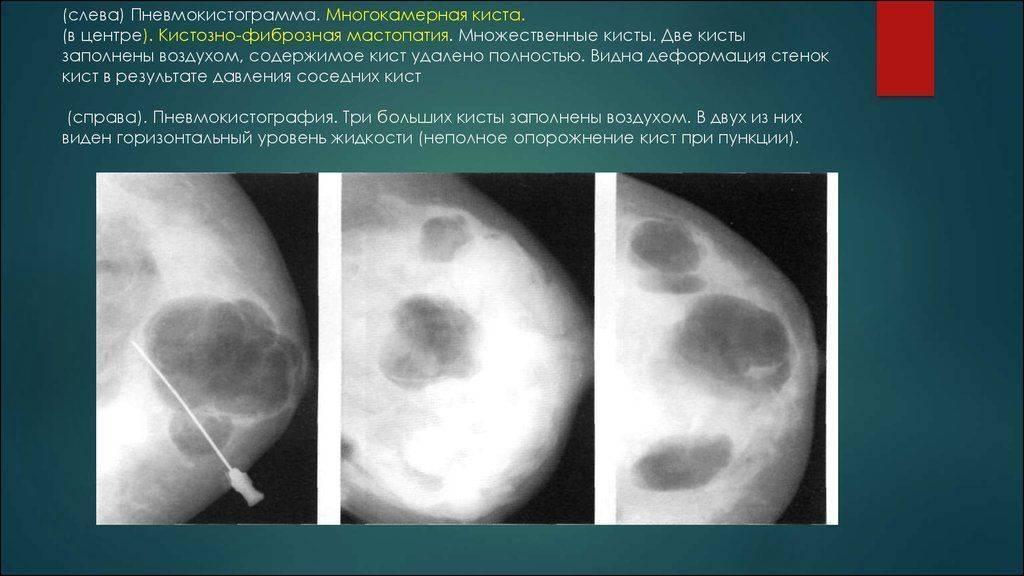 признаки фиброзной мастопатии молочных желез