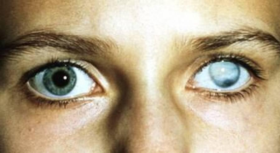 бельмо глаза