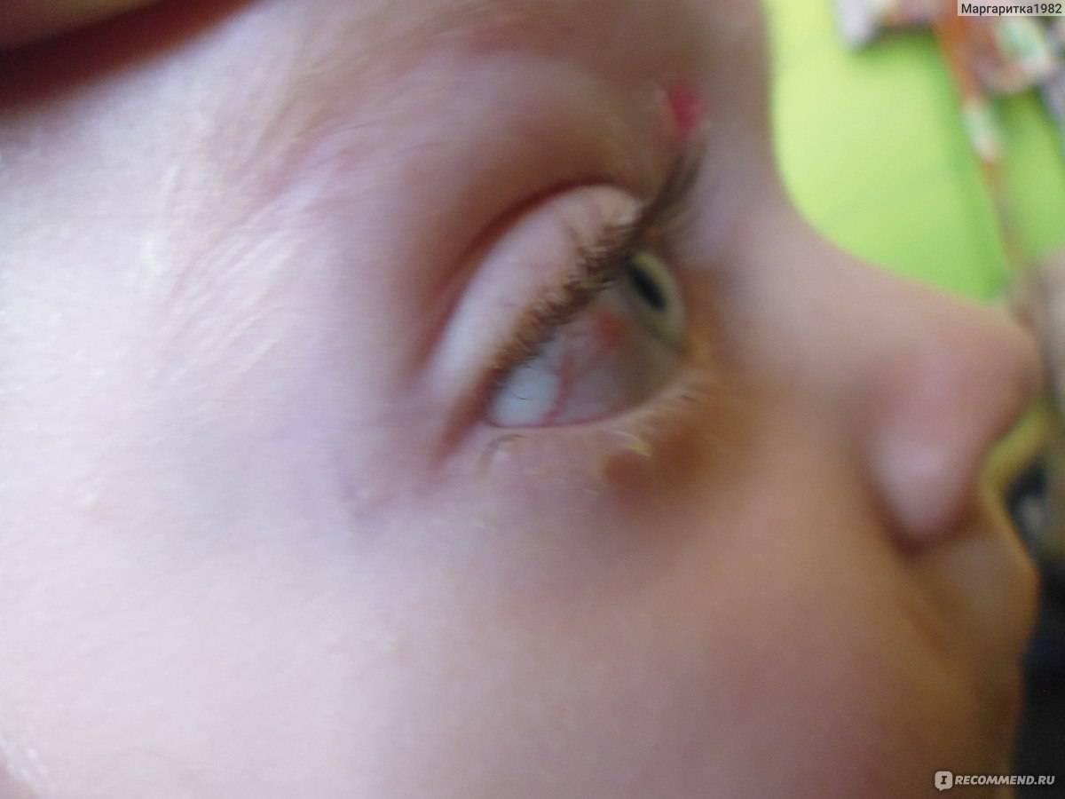 Выделения из глаза. коньюктевит или...?