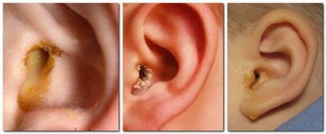 у ребенка течет ухо