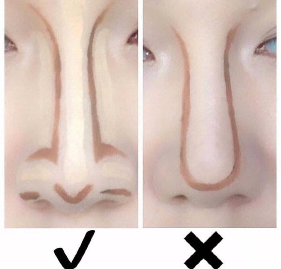 исправить форму носа