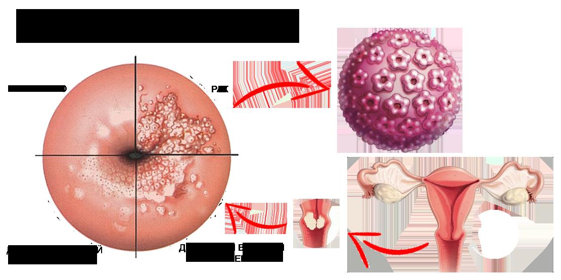 Герпес и онкология взаимосвязь