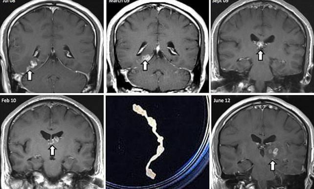 Перечень симптомов, указывающих на наличие паразитов в мозге человека