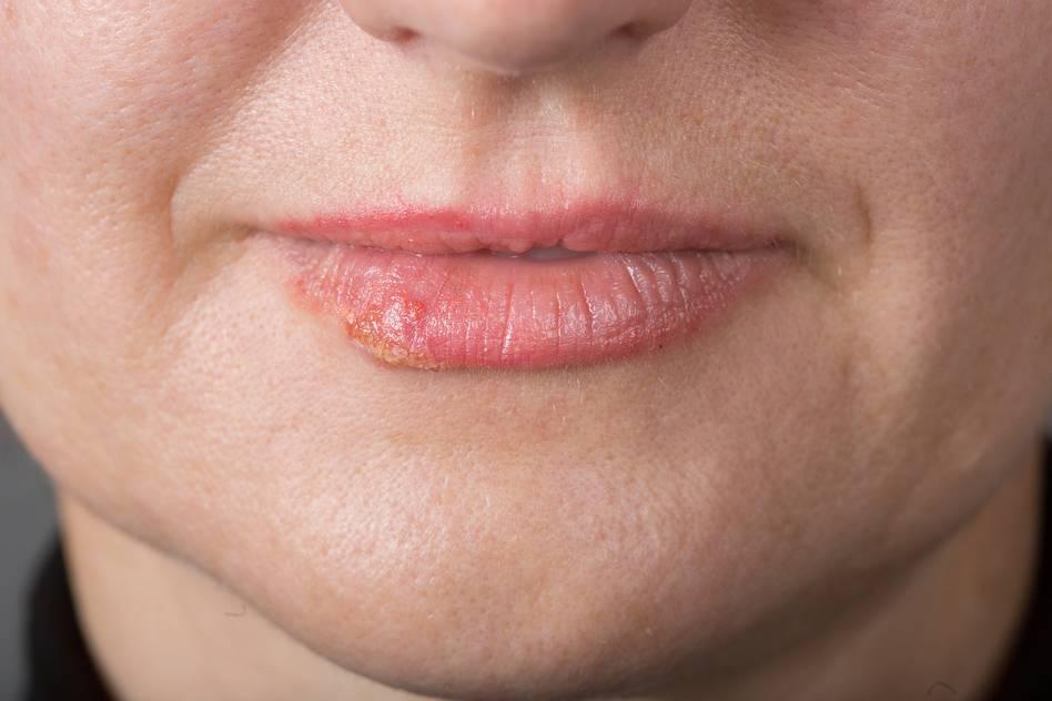 Малярия на губе как быстро вылечить